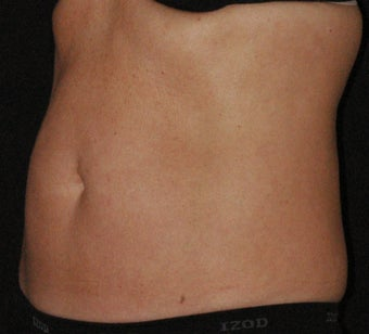 45-55 SculpSure Client after 2 treatments  after 3536253