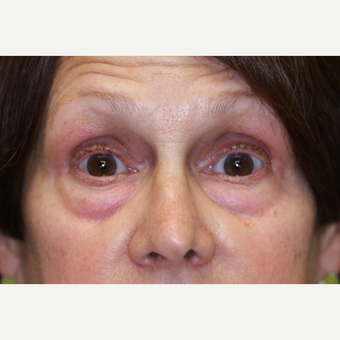 55-64 year old woman treated with Eyelid Surgery before 3070876
