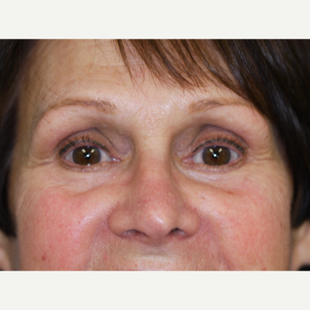55-64 year old woman treated with Eyelid Surgery after 3070876