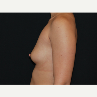 25-34 year old woman treated with Breast Implants before 3651102