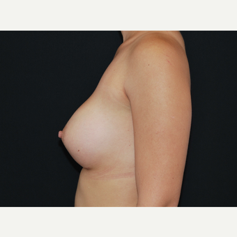 25-34 year old woman treated with Breast Implants after 3651102