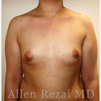 Bilateral Breast Augmentation-Patient has type II Tuberous Breast Deformity-Pre- & 20 Months Post-op before 3473927