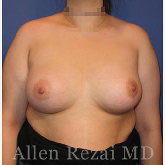Bilateral Breast Augmentation-Patient has type II Tuberous Breast Deformity-Pre- & 20 Months Post-op after 3473927