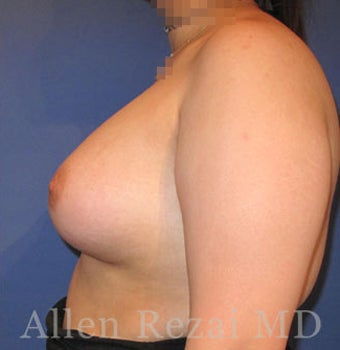 Bilateral Breast Augmentation-Patient has type II Tuberous Breast Deformity-Pre- & 20 Months Post-op 3473927