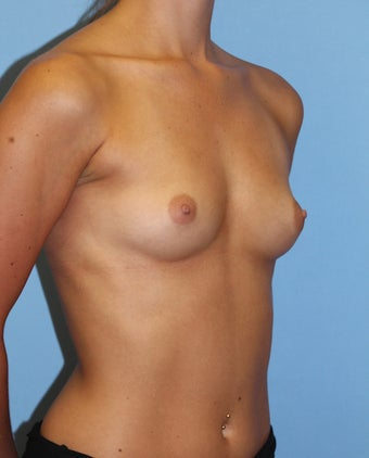 18-24 year old woman treated with Breast Implants before 2441046