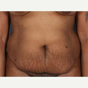 25-34 year old woman treated with Tummy Tuck before 2526747