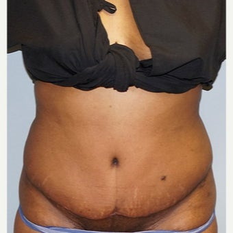 25-34 year old woman treated with Tummy Tuck after 2526747