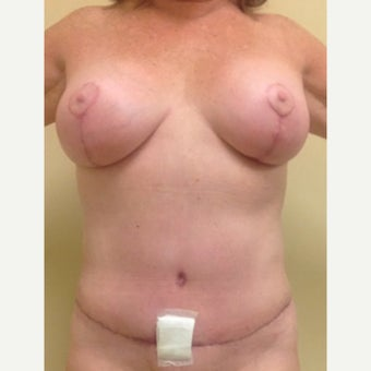 54 year old woman treated with Mommy Makeover after 2091503