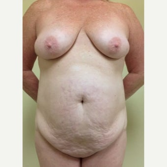54 year old woman treated with Mommy Makeover before 2091503