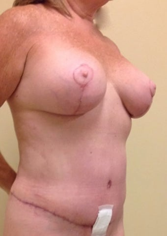 54 year old woman treated with Mommy Makeover 2091503