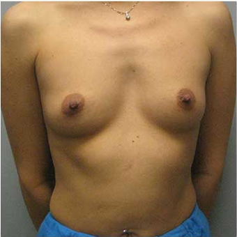 38 year old woman treated with Ideal Implant before 3468833