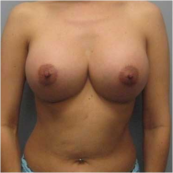 38 year old woman treated with Ideal Implant after 3468833
