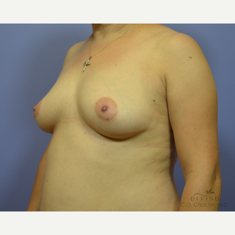 35-44 year old woman treated with Breast Augmentation before 3418966