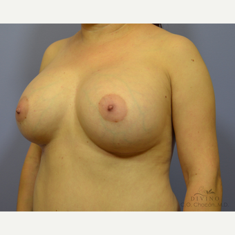 35-44 year old woman treated with Breast Augmentation after 3418966