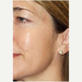 Woman treated with Photofacial after 2661400