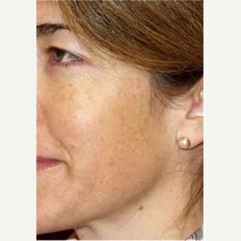 Woman treated with Photofacial before 2661400