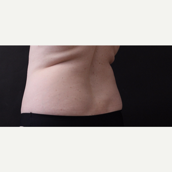46 year old woman treated with CoolSculpting before 3168893