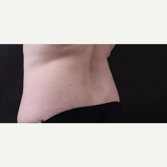 46 year old woman treated with CoolSculpting after 3168893