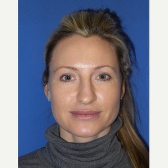 33 year old woman treated with Rhinoplasty and septoplasty before 3326226
