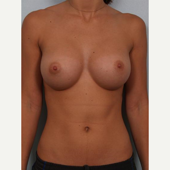 18-24 year old woman treated with Breast Implants after 3502606