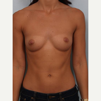 18-24 year old woman treated with Breast Implants before 3502606