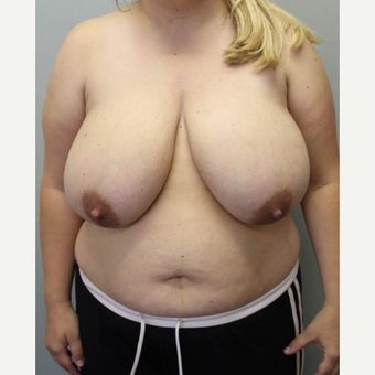 25-34 year old woman treated with Breast Reduction before 1569089