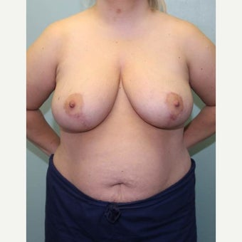 25-34 year old woman treated with Breast Reduction after 1569089