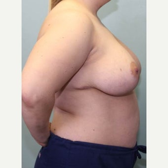 25-34 year old woman treated with Breast Reduction 1569089