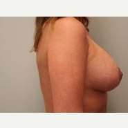 25-34 year old woman treated with Breast Lift after 3339083