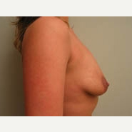 25-34 year old woman treated with Breast Lift before 3339083