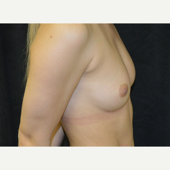 18-24 year old woman treated with Breast Augmentation before 3419244