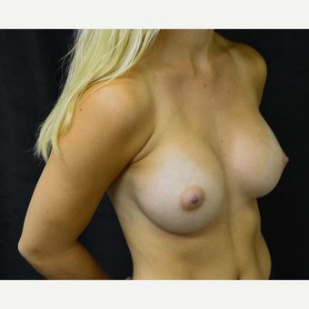 18-24 year old woman treated with Breast Augmentation after 3419244