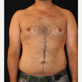 25-34 year old man treated with Liposuction after 3827822