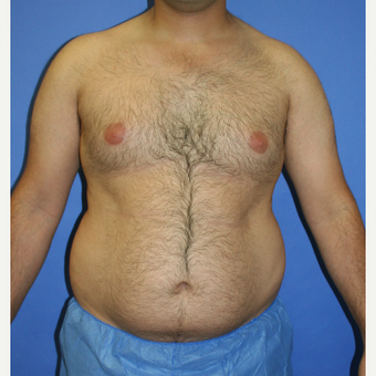 25-34 year old man treated with Liposuction before 3827822