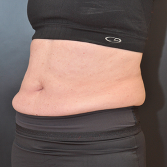 CoolSculpting after 2048517