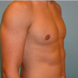 18-24 year old man treated with gynecomastia Reduction after 3722134