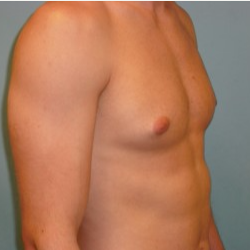 18-24 year old man treated with gynecomastia Reduction before 3722134