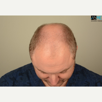 35-44 year old man treated with FUE Hair Transplant before 3053533