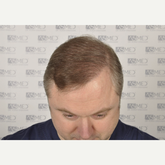 35-44 year old man treated with FUE Hair Transplant after 3053533