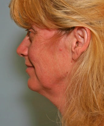 49 y/o MACS Lift & Lower Blepharoplasty with return to work in 12 days before 928129