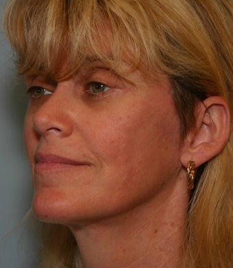 49 y/o MACS Lift & Lower Blepharoplasty with return to work in 12 days 928129