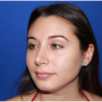 18-24 YO Female Primary Rhinoplasty after 3129192