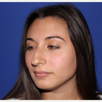18-24 YO Female Primary Rhinoplasty before 3129192