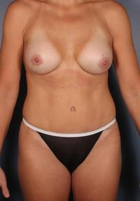 Breast Augmentation, Mommy Makeover, Tummy Tuck after 1379879