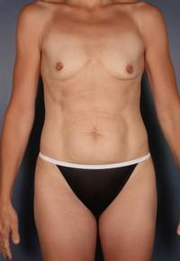 Breast Augmentation, Mommy Makeover, Tummy Tuck before 1379879