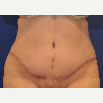 35-44 year old woman treated with Tummy Tuck after 3037465