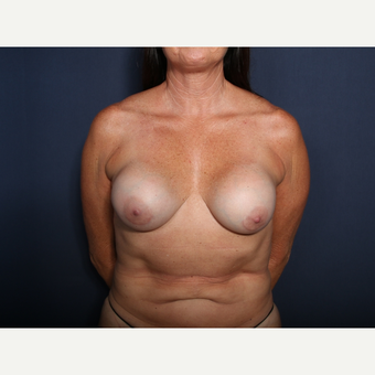 55-64 year old woman treated with Breast Implant Revision (view 1 of 2) before 3332984