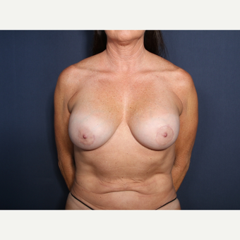 55-64 year old woman treated with Breast Implant Revision (view 1 of 2) after 3332984
