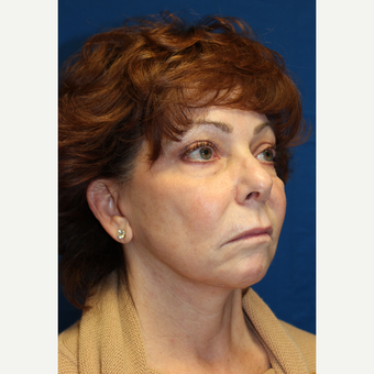 55-64 year old woman treated with Facelift with submentoplasty after 2894131