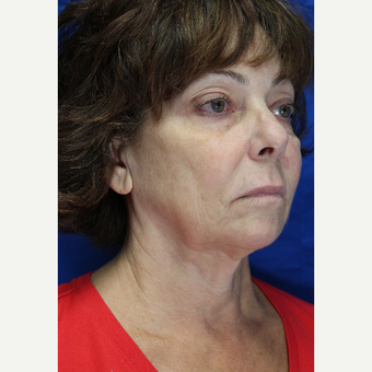 55-64 year old woman treated with Facelift with submentoplasty before 2894131